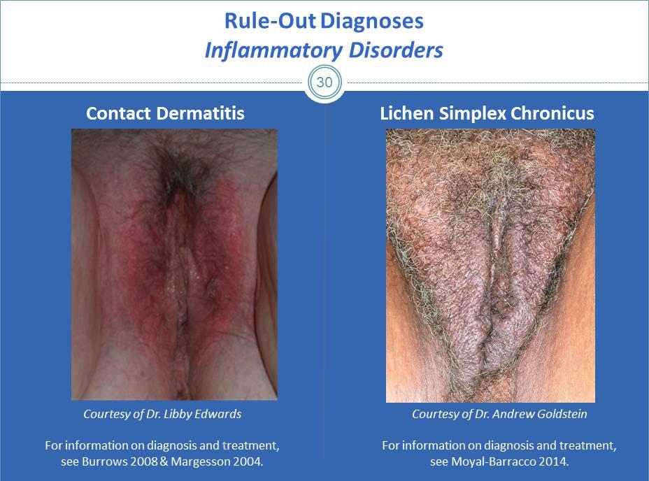 herpes genitalis symptome frau